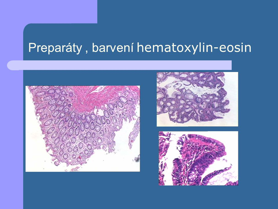 Preparáty , barvení hematoxylin-eosin