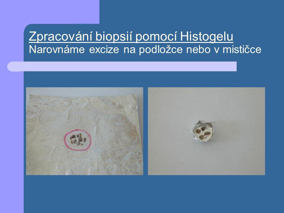 Zpracování biopsií pomocí Histogelu Narovnáme excize na podložce nebo v mističce