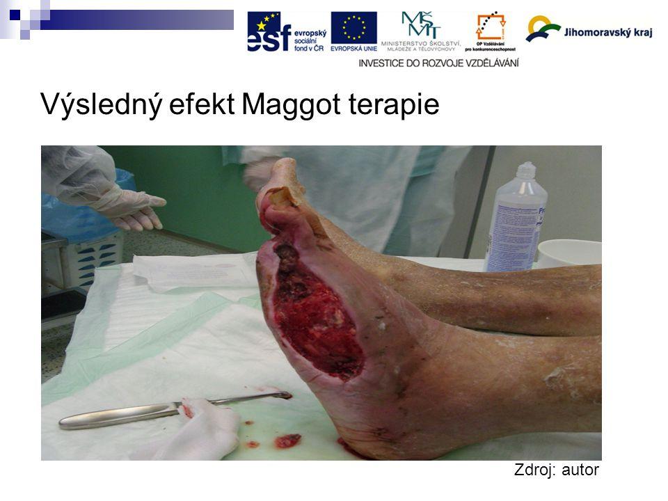 Výsledný efekt Maggot terapie