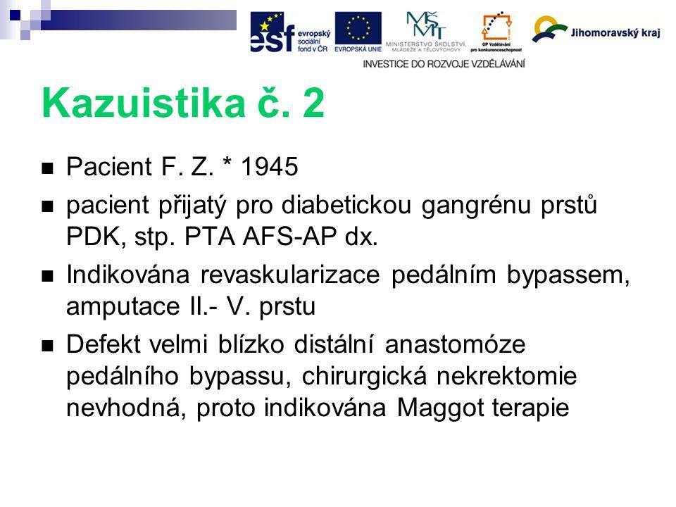 Kazuistika č. 2 Pacient F. Z. * 1945