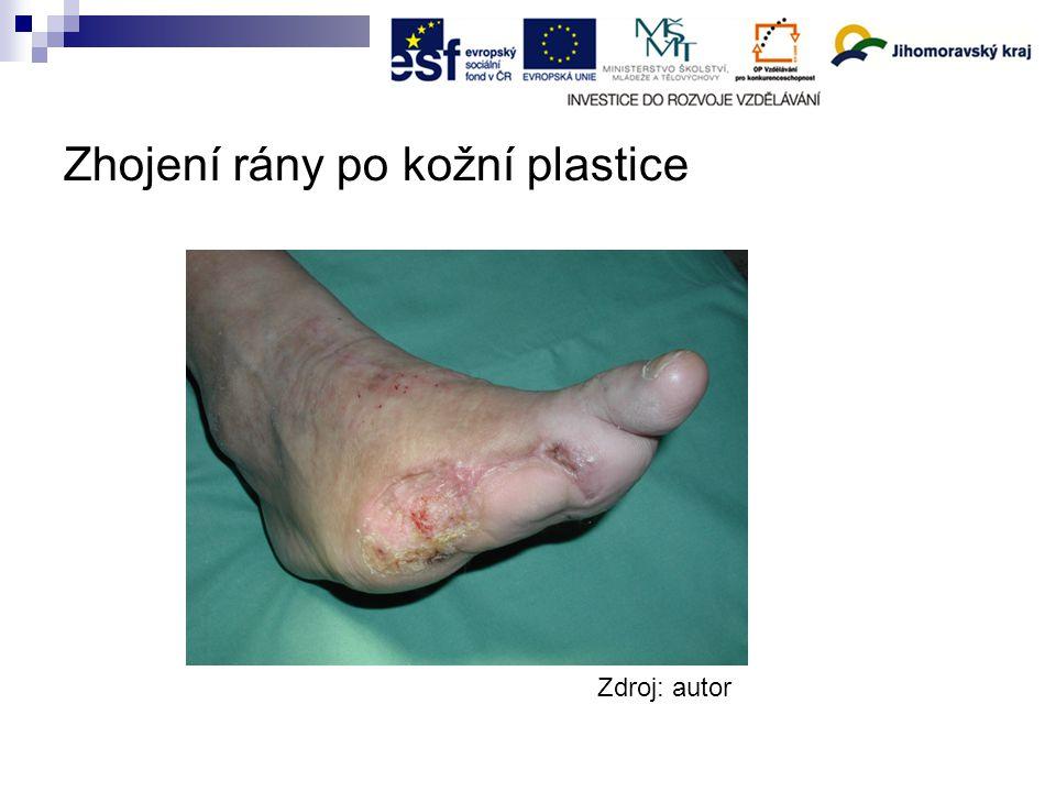 Zhojení rány po kožní plastice