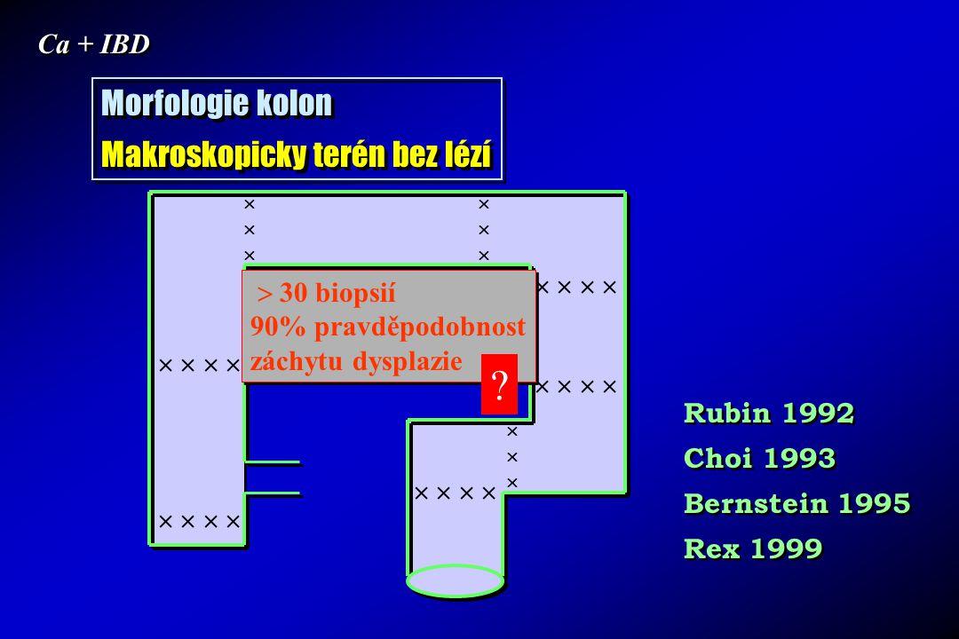 Morfologie kolon Makroskopicky terén bez lézí Ca + IBD    