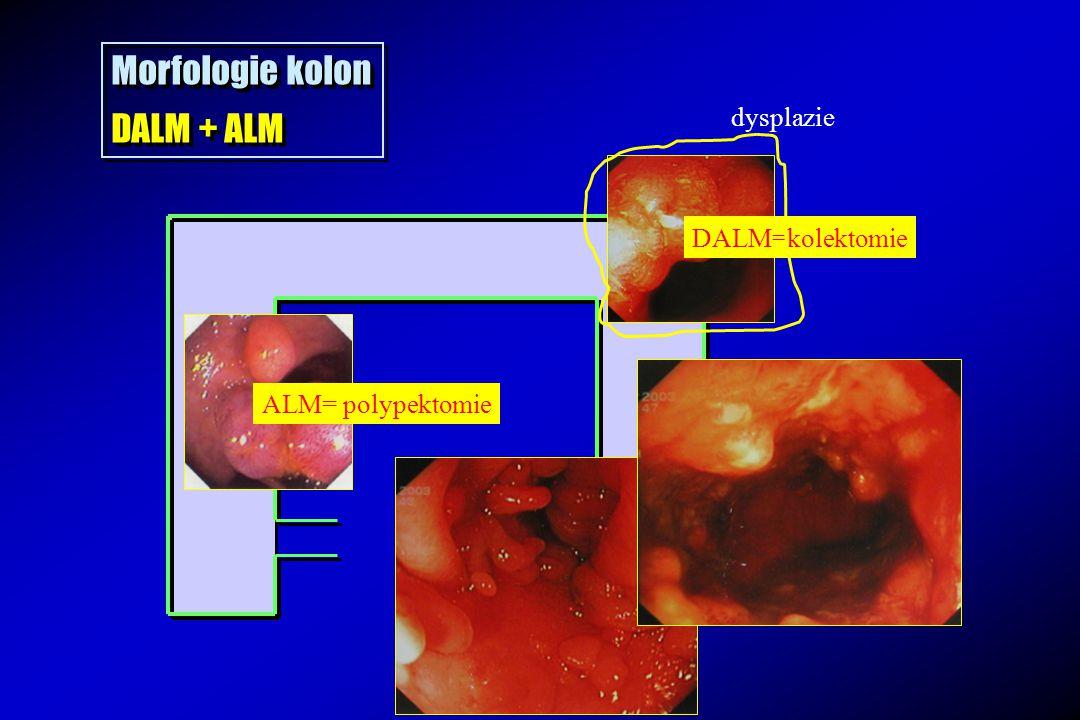 Morfologie kolon DALM + ALM CrCa ! dysplazie DALM=kolektomie
