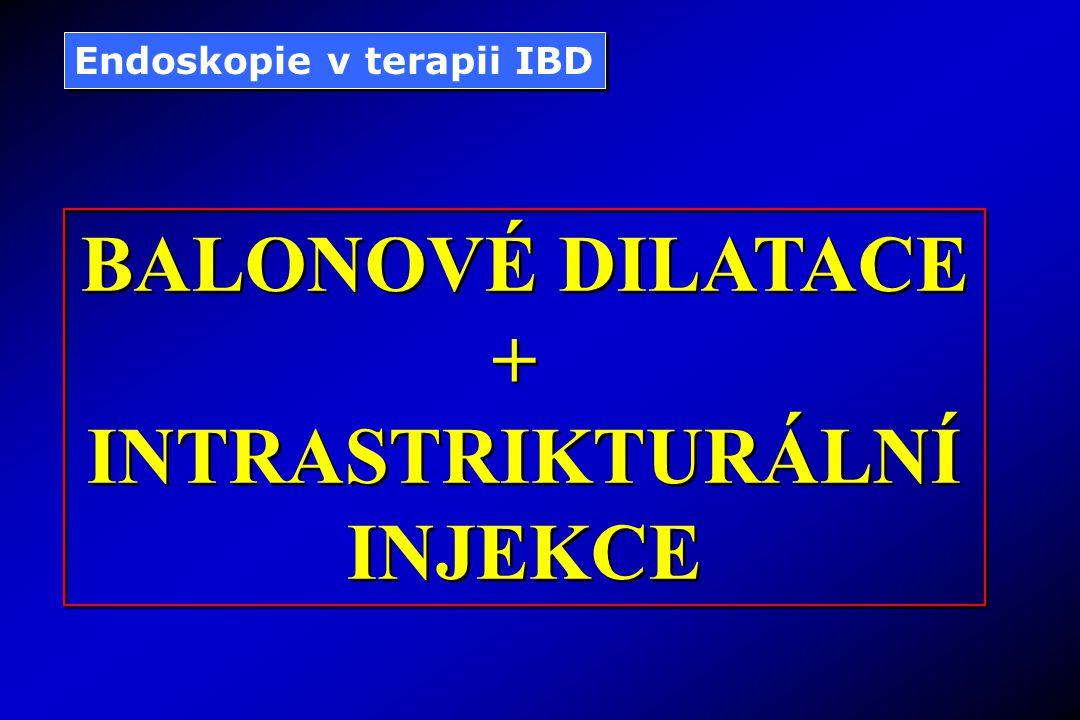 BALONOVÉ DILATACE + INTRASTRIKTURÁLNÍ INJEKCE