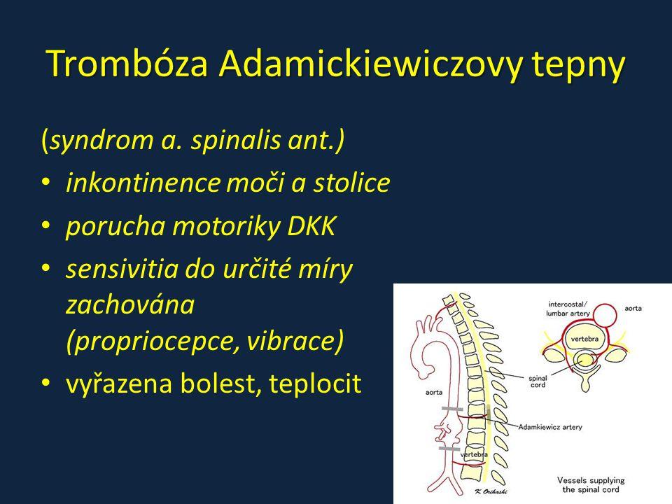 Trombóza Adamickiewiczovy tepny