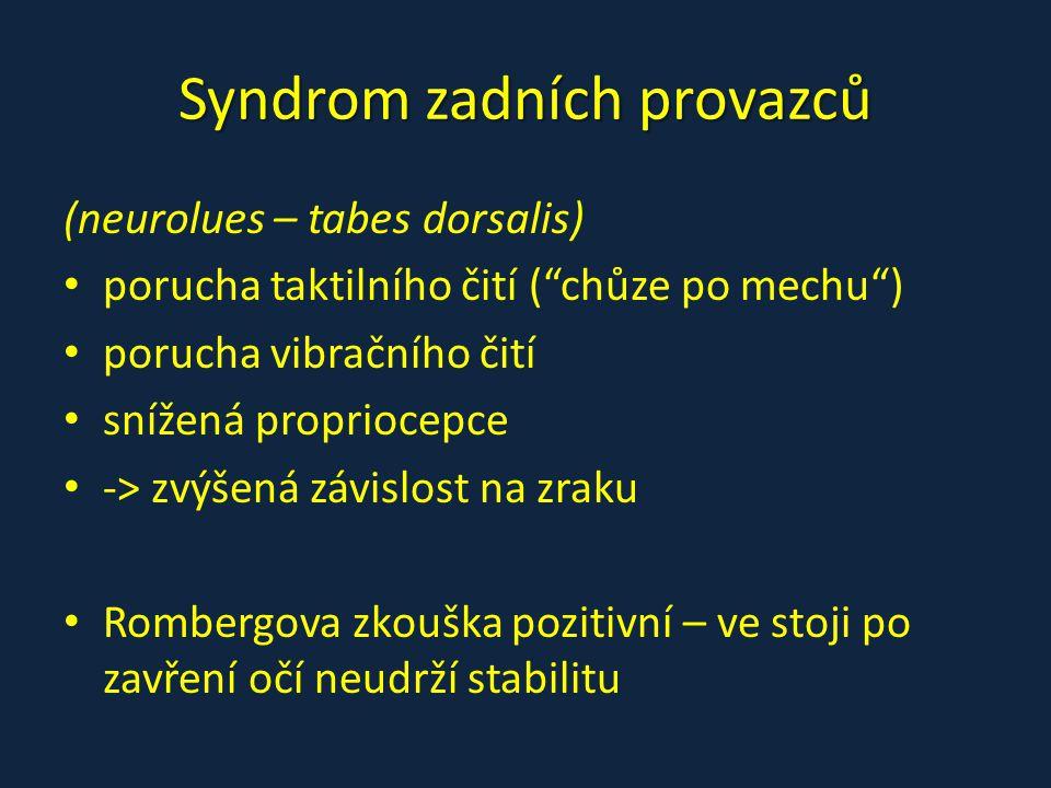 Syndrom zadních provazců