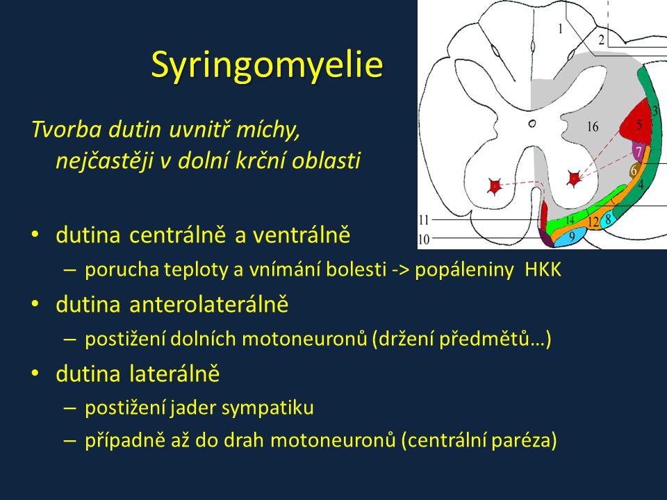Syringomyelie Tvorba dutin uvnitř míchy, nejčastěji v dolní krční oblasti. dutina centrálně a ventrálně.