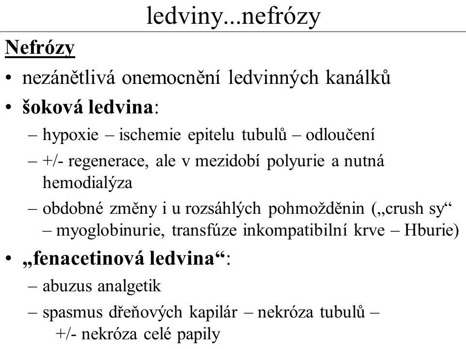 ledviny...nefrózy Nefrózy nezánětlivá onemocnění ledvinných kanálků