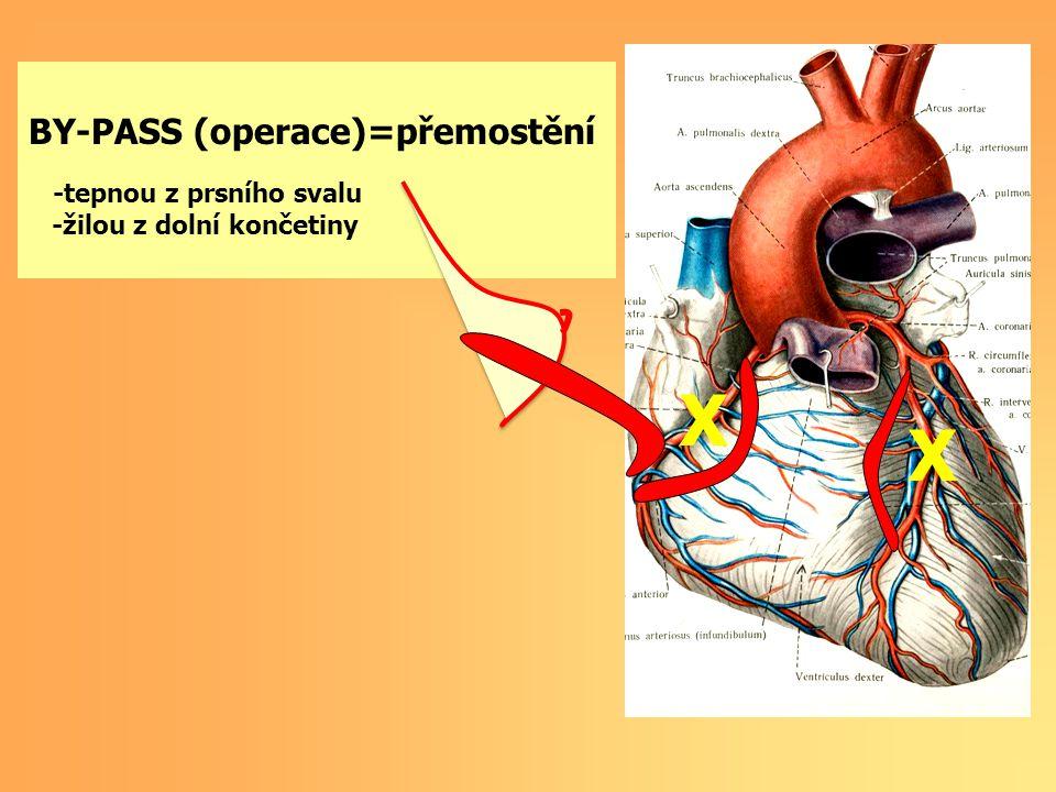 X X BY-PASS (operace)=přemostění BY-PASS, STENT