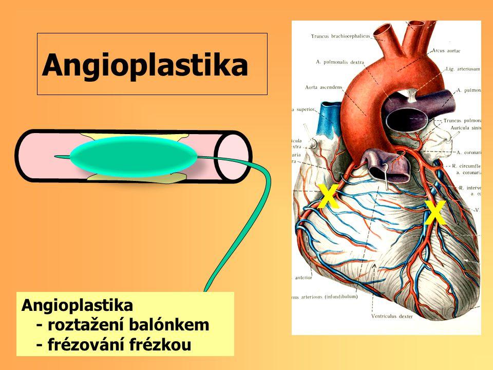 X X Angioplastika Angioplastika - roztažení balónkem