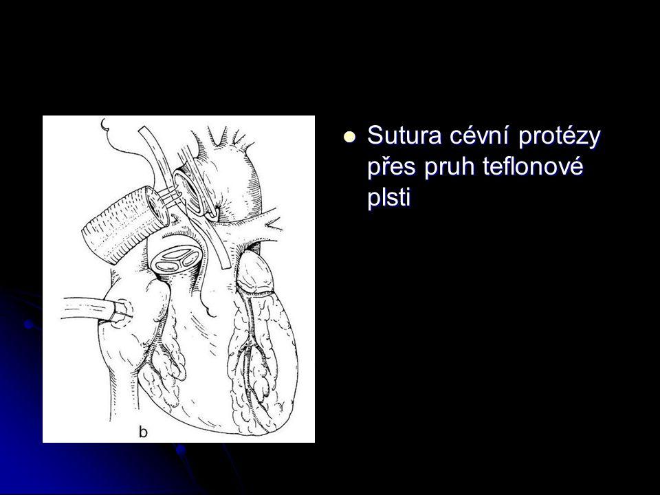 Sutura cévní protézy přes pruh teflonové plsti