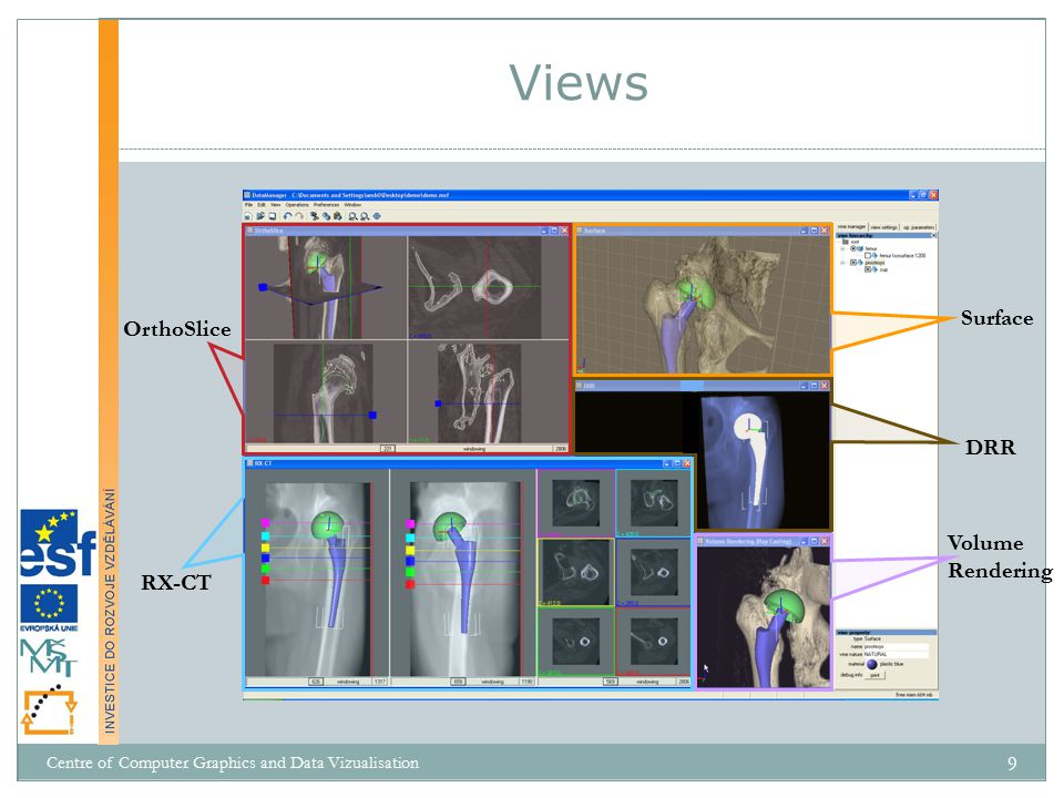 Views Surface OrthoSlice DRR Volume Rendering RX-CT