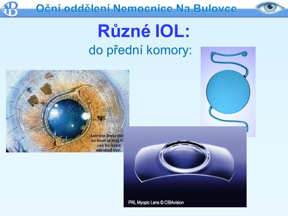 Oční oddělení Nemocnice Na Bulovce