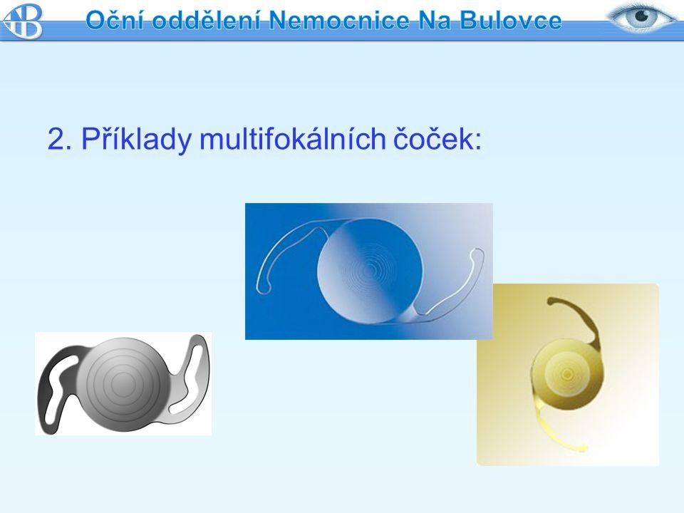 2. Příklady multifokálních čoček: