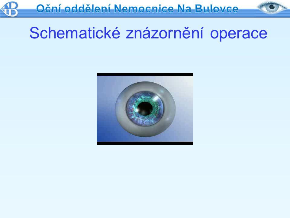 Schematické znázornění operace