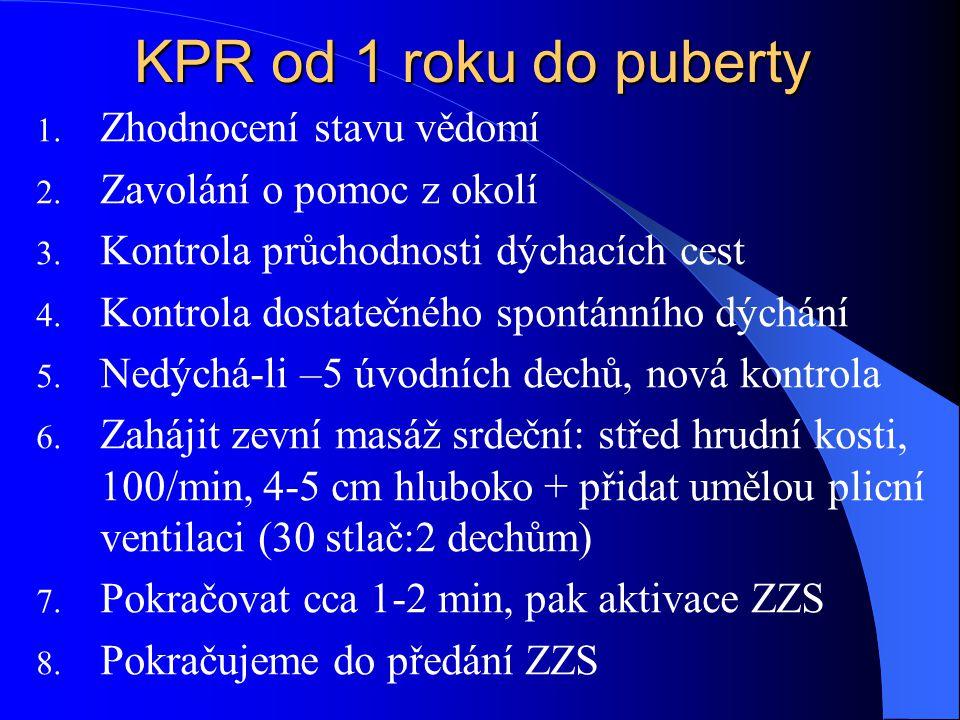 KPR od 1 roku do puberty Zhodnocení stavu vědomí
