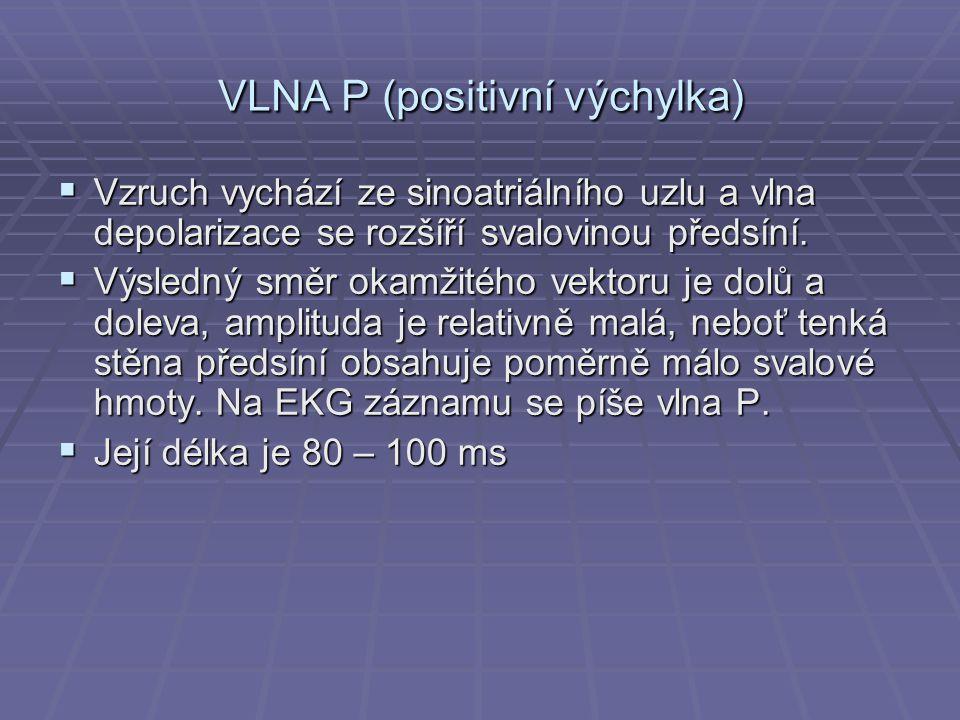VLNA P (positivní výchylka)