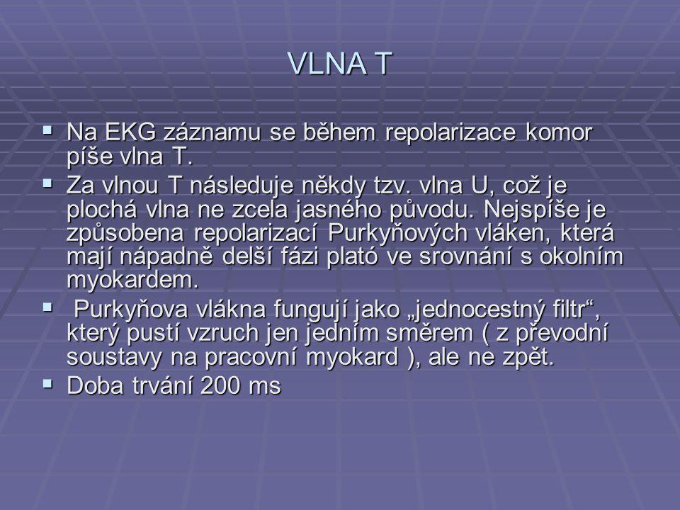 VLNA T Na EKG záznamu se během repolarizace komor píše vlna T.