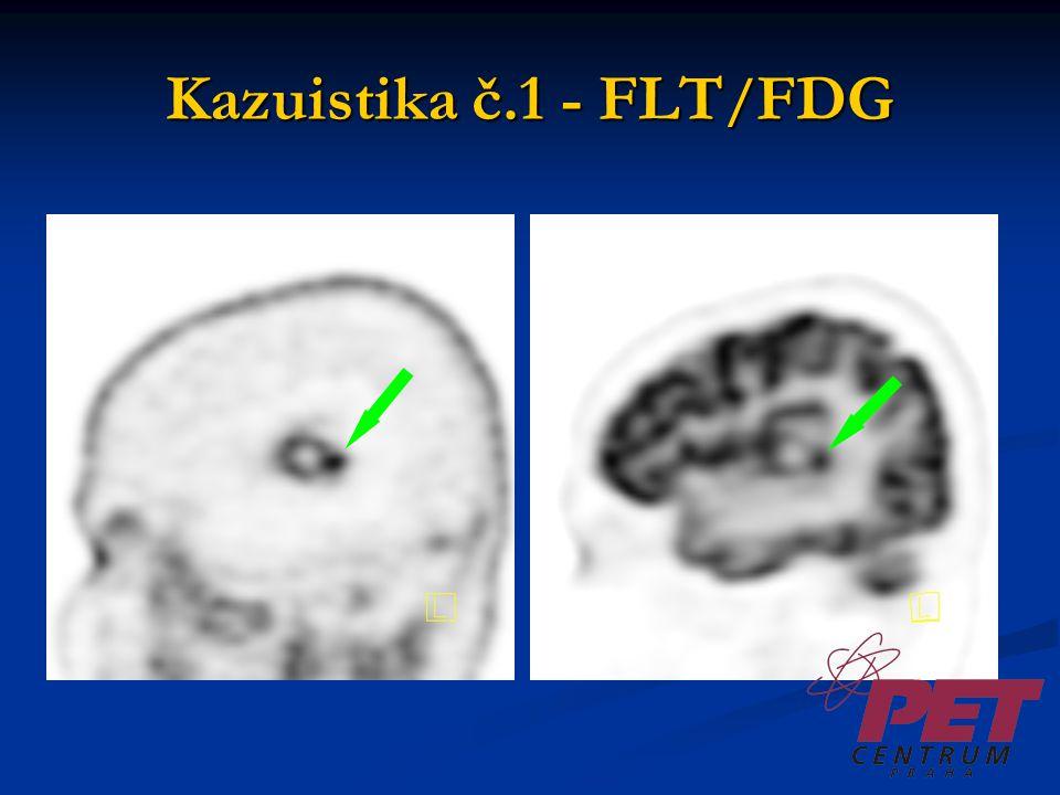 Kazuistika č.1 - FLT/FDG