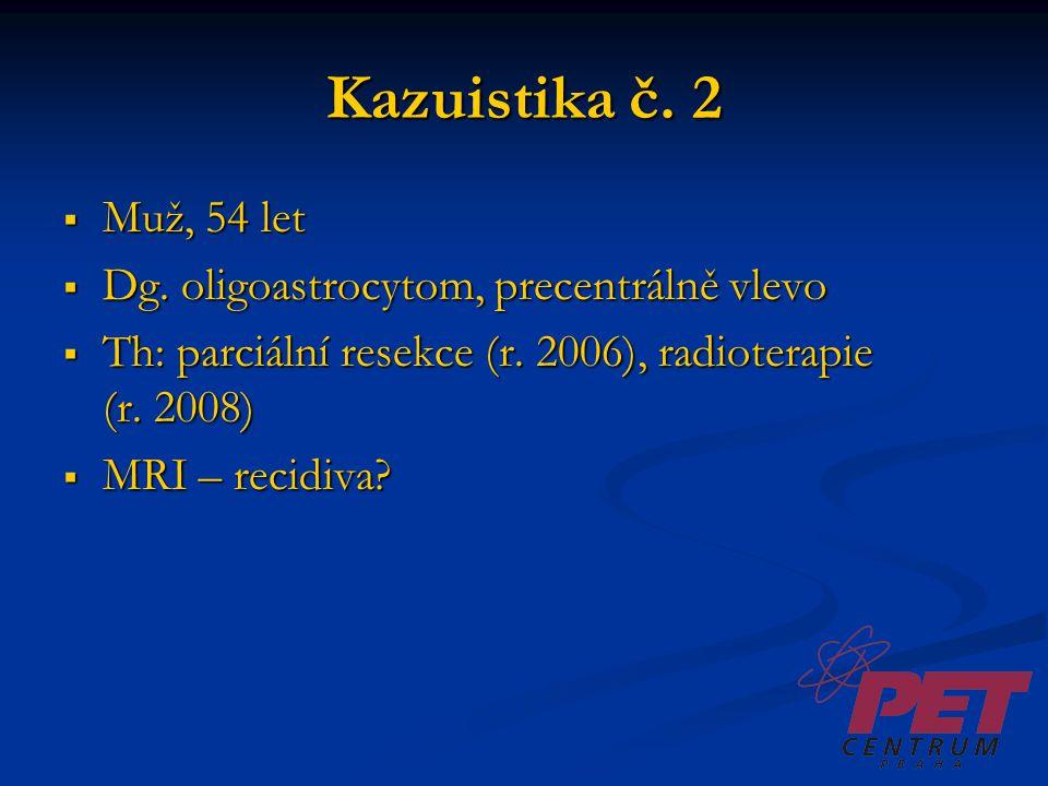 Kazuistika č. 2 Muž, 54 let Dg. oligoastrocytom, precentrálně vlevo