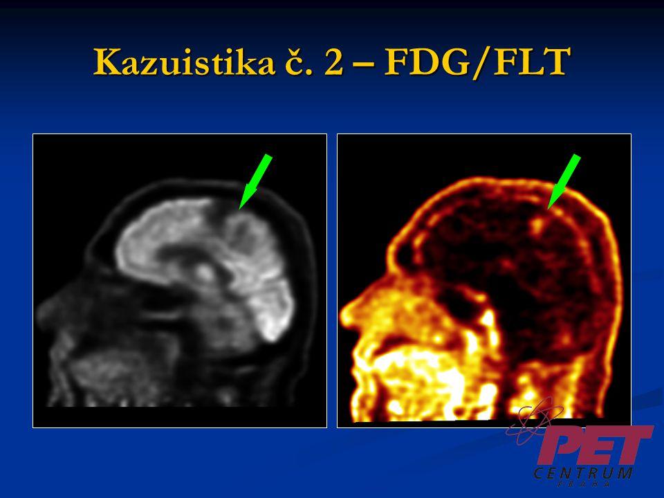 Kazuistika č. 2 – FDG/FLT
