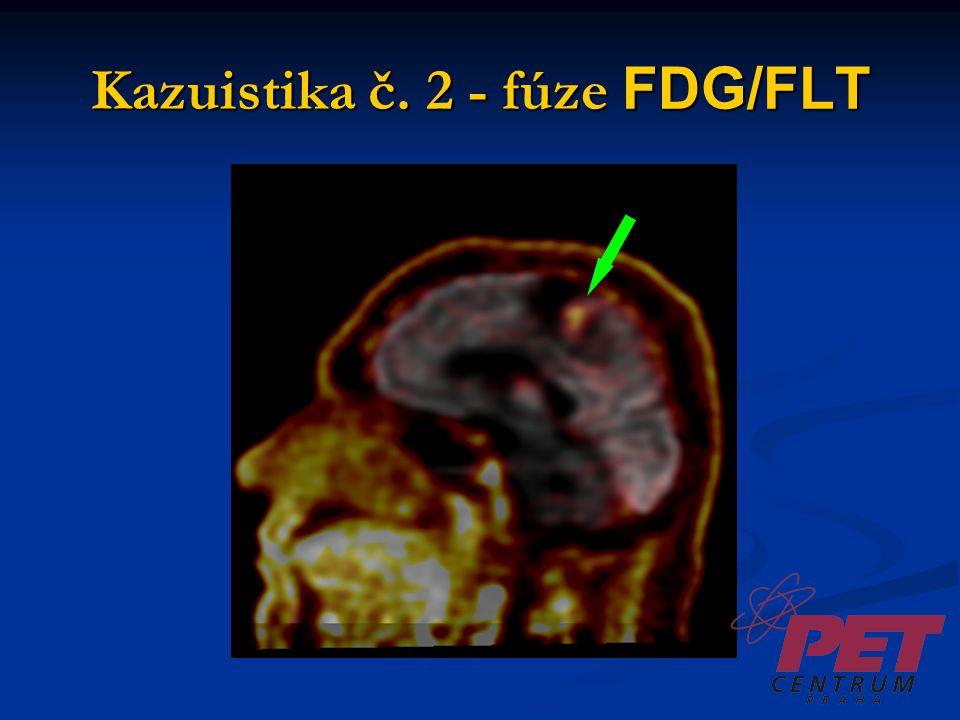Kazuistika č. 2 - fúze FDG/FLT