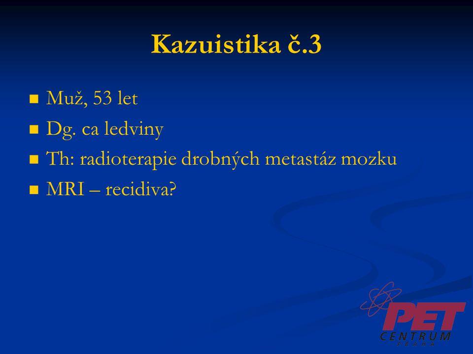 Kazuistika č.3 Muž, 53 let Dg. ca ledviny