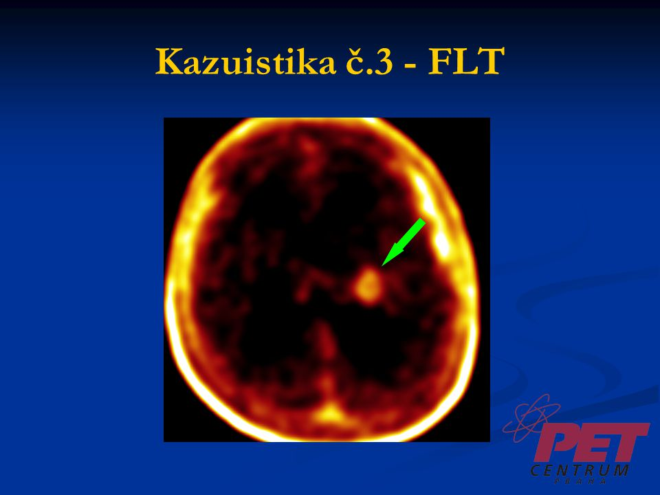 Kazuistika č.3 - FLT