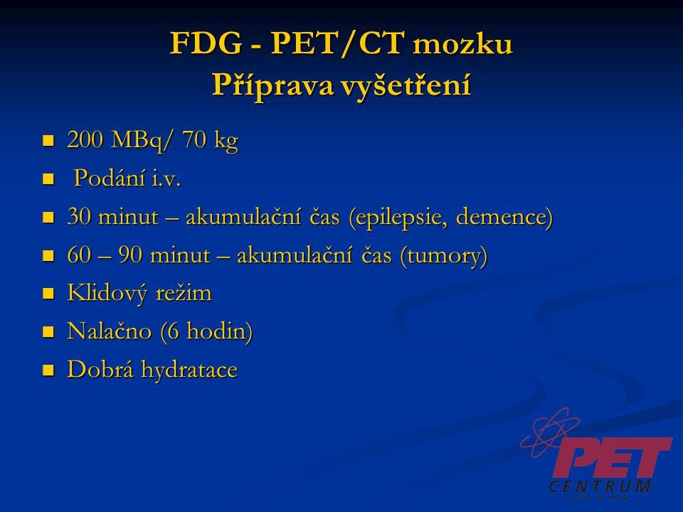 FDG - PET/CT mozku Příprava vyšetření