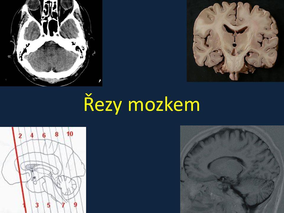 Řezy mozkem