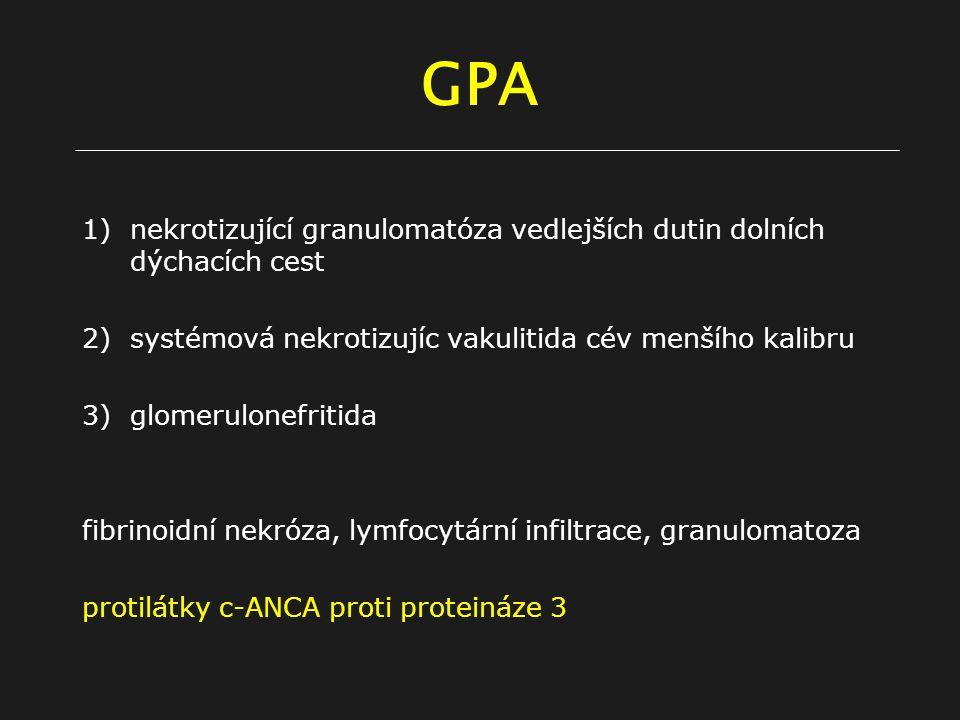 GPA nekrotizující granulomatóza vedlejších dutin dolních dýchacích cest. systémová nekrotizujíc vakulitida cév menšího kalibru.
