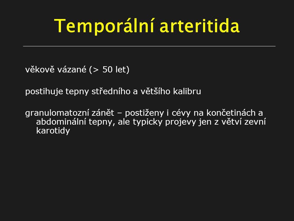 Temporální arteritida