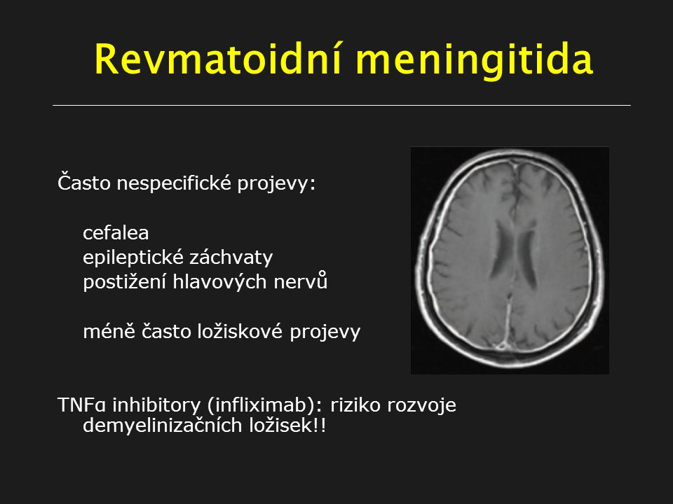 Revmatoidní meningitida