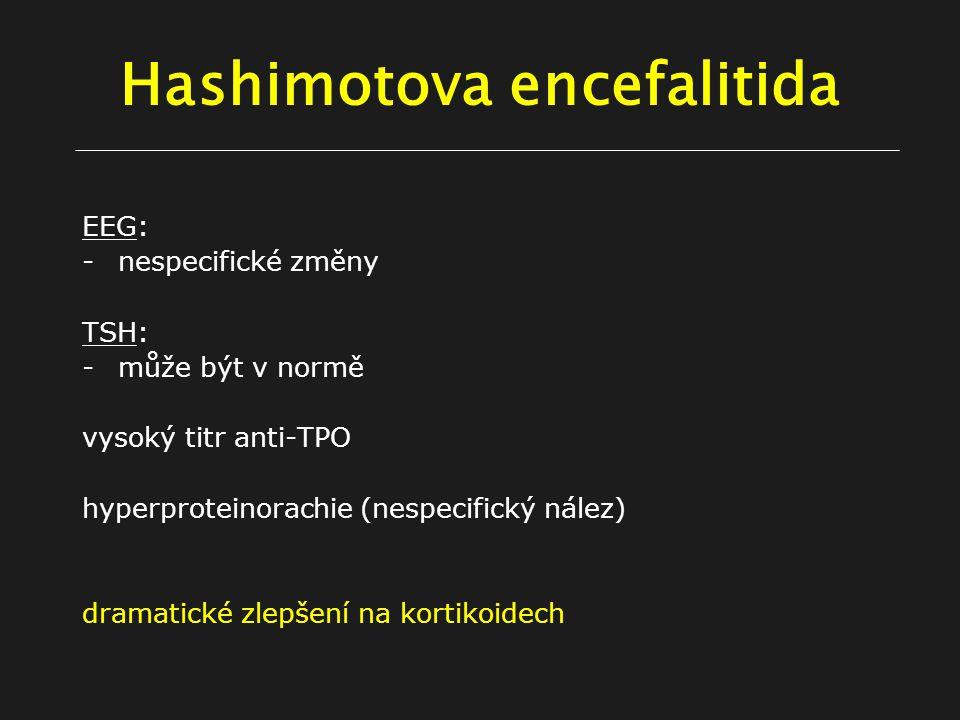 Hashimotova encefalitida