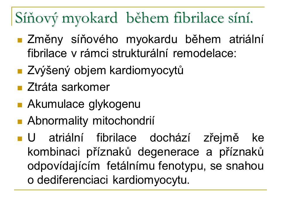 Síňový myokard během fibrilace síní.