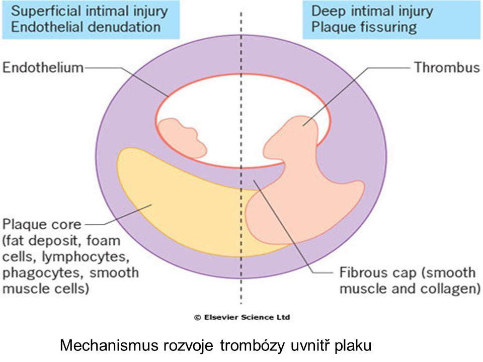 Mechanismus rozvoje trombózy uvnitř plaku