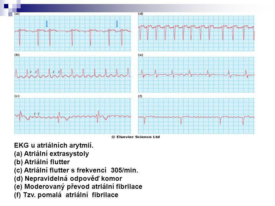 EKG u atriálních arytmií.