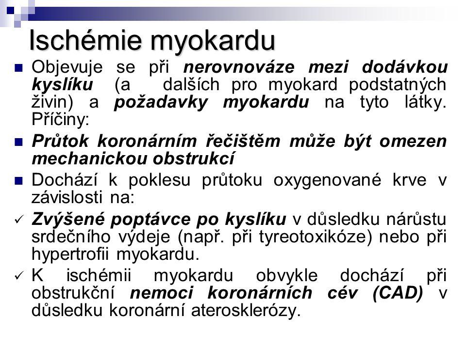 Ischémie myokardu