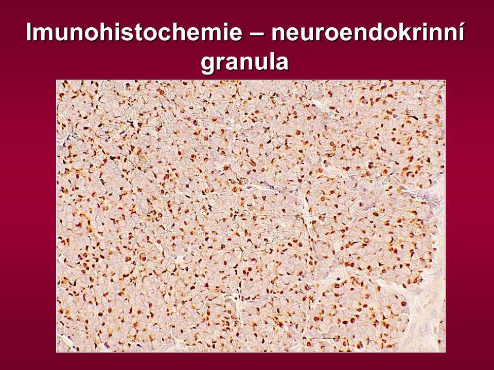 Imunohistochemie – neuroendokrinní granula