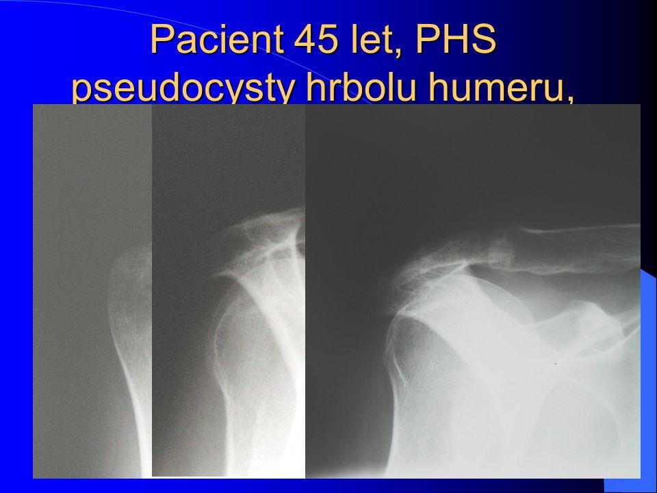 Pacient 45 let, PHS pseudocysty hrbolu humeru, artrotické změny AC kloubu, subakrom.