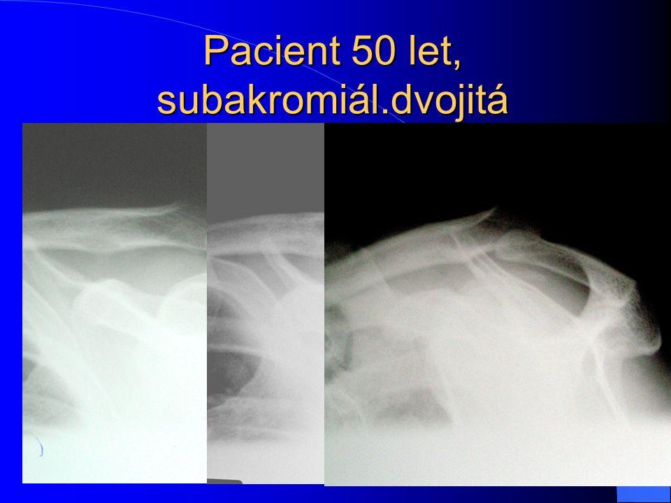 Pacient 50 let, subakromiál