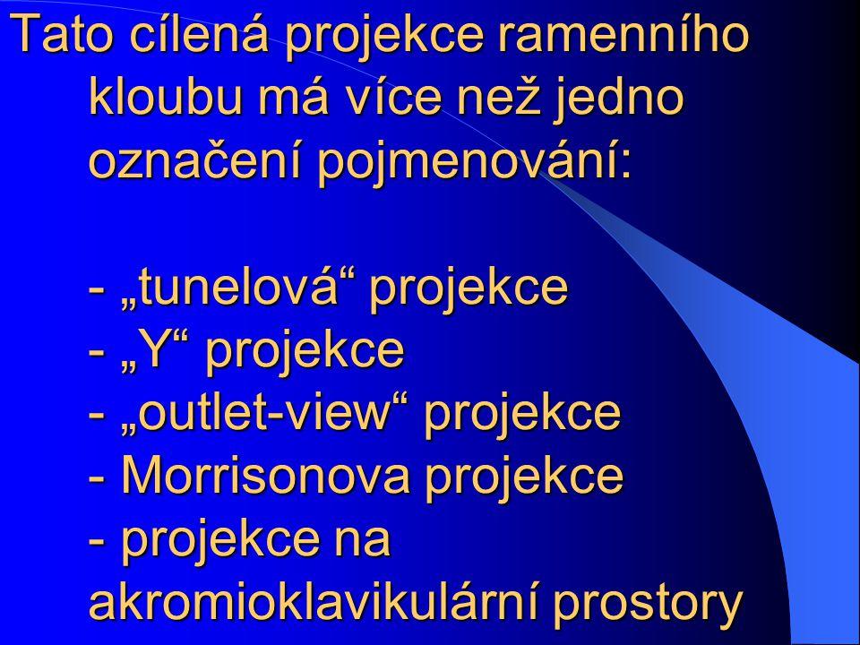"""Tato cílená projekce ramenního kloubu má více než jedno označení pojmenování: - """"tunelová projekce - """"Y projekce - """"outlet-view projekce - Morrisonova projekce - projekce na akromioklavikulární prostory"""