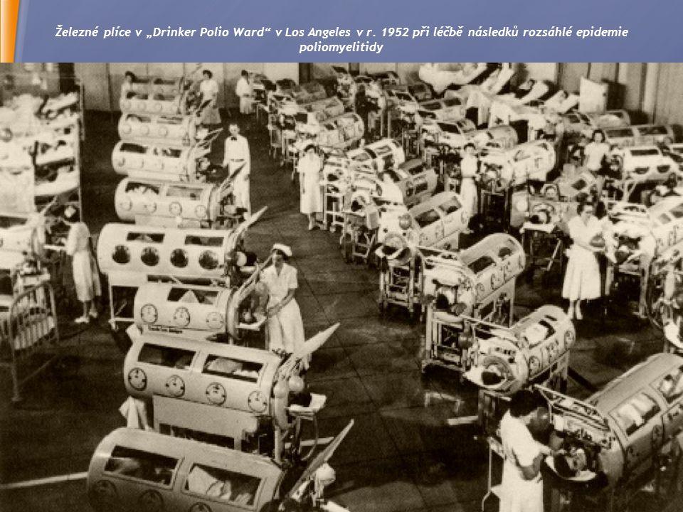 """Železné plíce v """"Drinker Polio Ward v Los Angeles v r"""