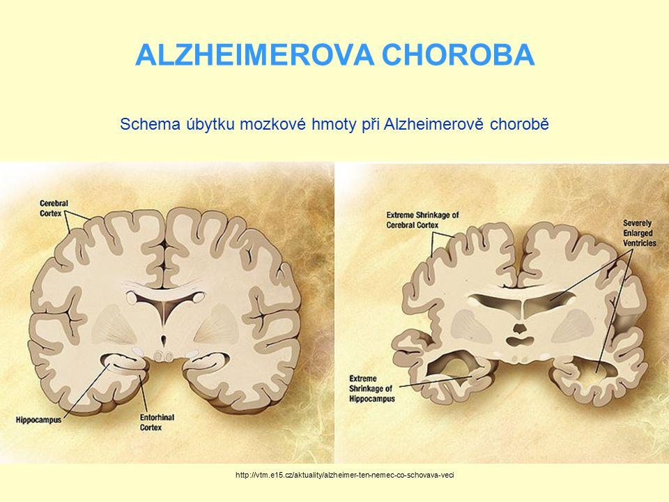 Schema úbytku mozkové hmoty při Alzheimerově chorobě