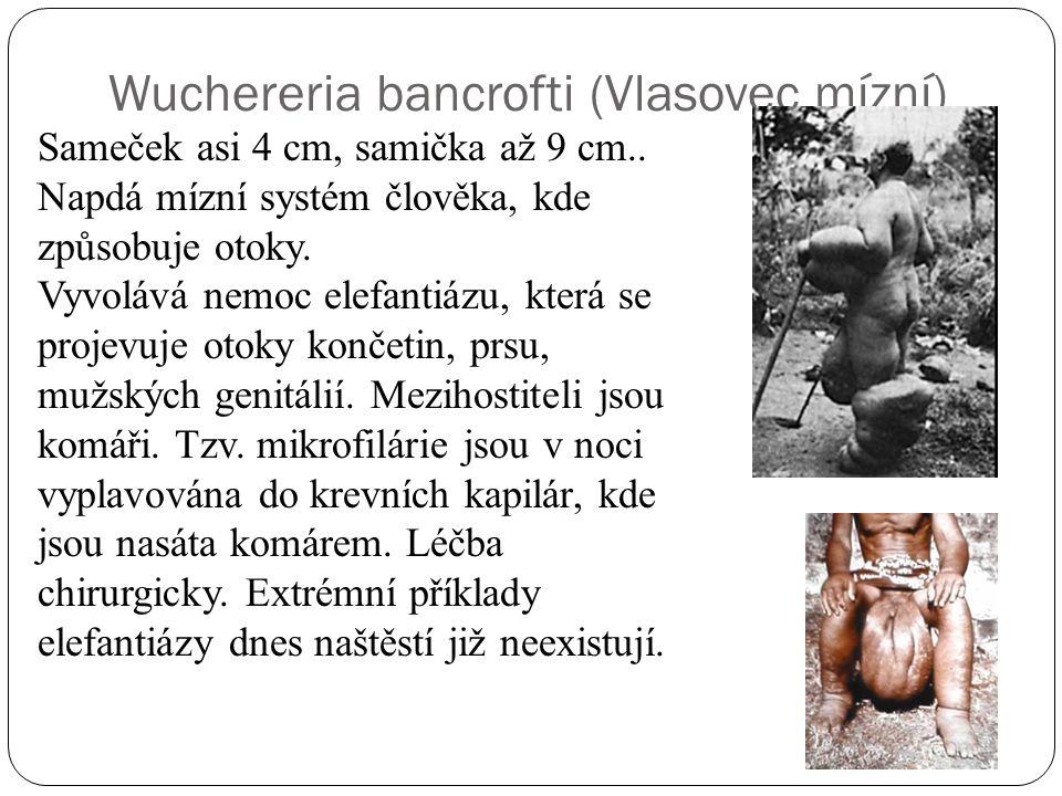 Wuchereria bancrofti (Vlasovec mízní)