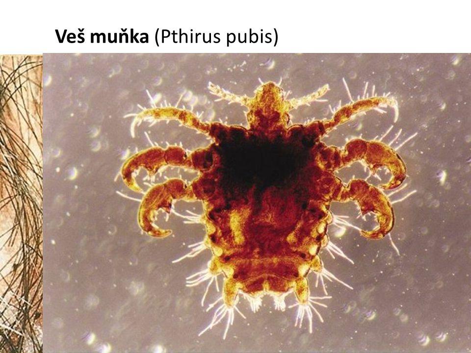 Veš muňka (Pthirus pubis)