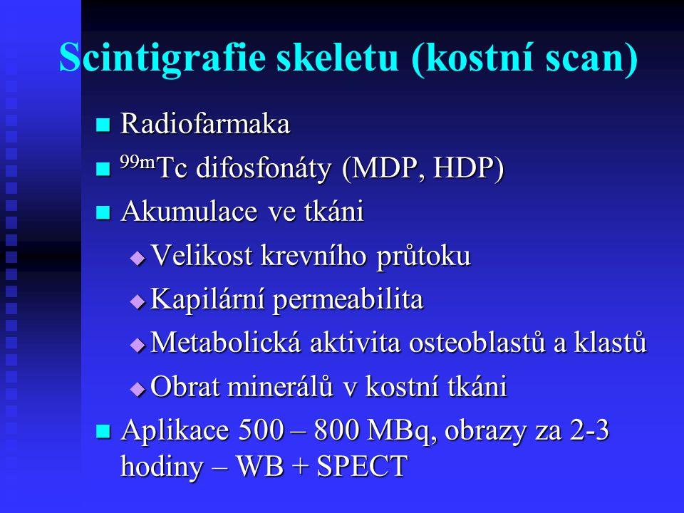Scintigrafie skeletu (kostní scan)