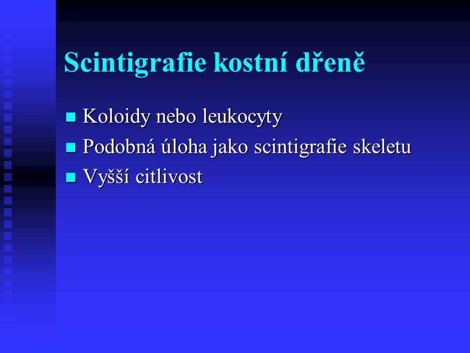 Scintigrafie kostní dřeně