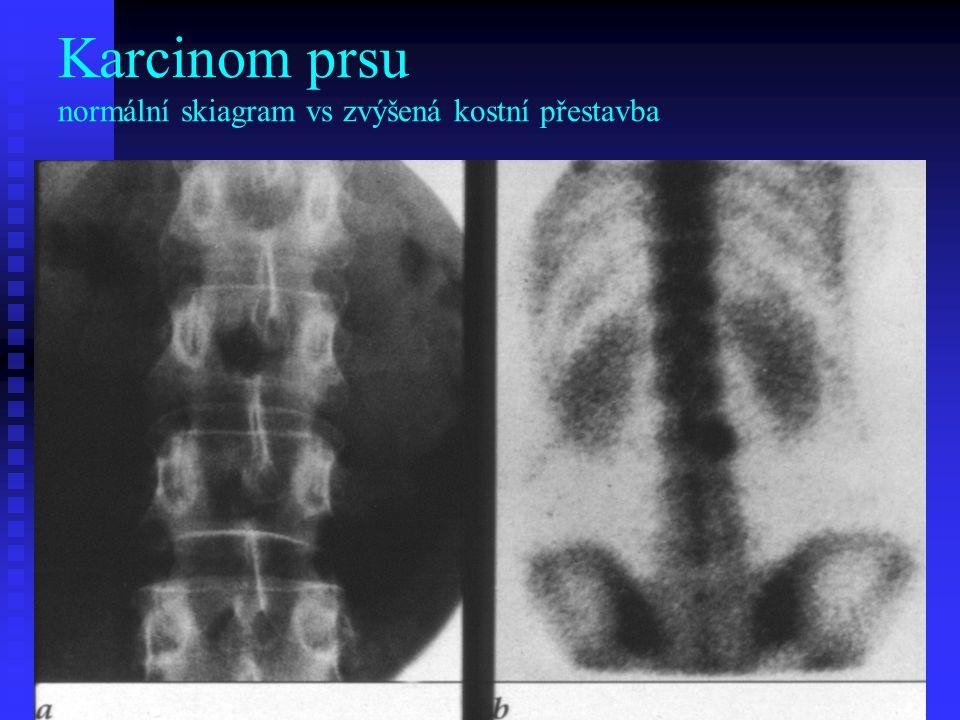 Karcinom prsu normální skiagram vs zvýšená kostní přestavba
