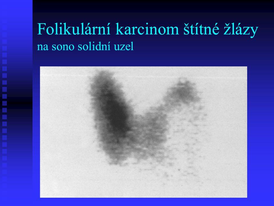 Folikulární karcinom štítné žlázy na sono solidní uzel